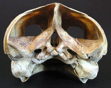 Loggerhead Skull, back view