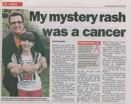 My mystery rash was a cancer